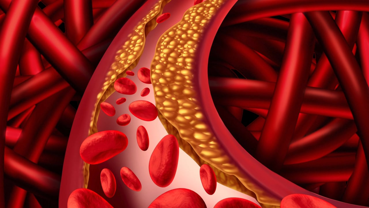 Photo of What are the symptoms warning high cholesterol levels?