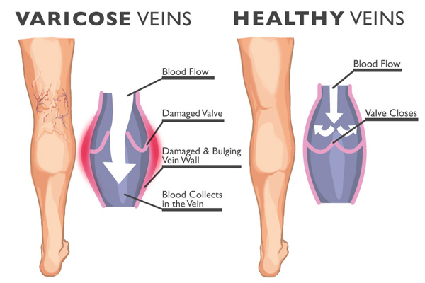 Photo of 6 home remedies to eliminate varicose veins
