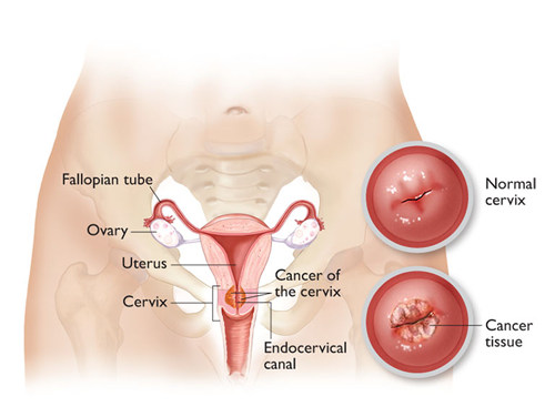 Photo of 7 Warning Signs of Cervical Cancer